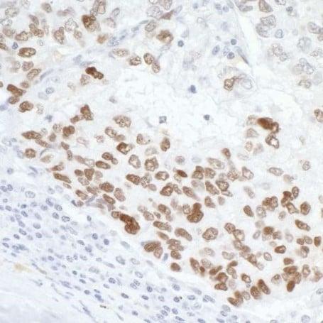 Immunohistochemistry (Formalin/PFA-fixed paraffin-embedded sections) - Anti-p53 antibody (ab17990)