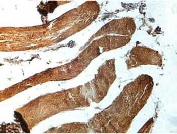 Immunohistochemistry (Formalin/PFA-fixed paraffin-embedded sections) - Anti-YTHDF2 antibody (ab170118)