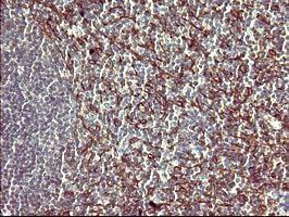Immunohistochemistry (Formalin/PFA-fixed paraffin-embedded sections) - Anti-PPAP2A antibody [OTI1H4] (ab170151)