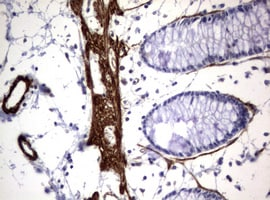 Immunohistochemistry (Formalin/PFA-fixed paraffin-embedded sections) - Anti-Hamartin antibody [OTI3A2] (ab170164)