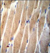 Immunohistochemistry (Formalin/PFA-fixed paraffin-embedded sections) - Anti-CLEC4F antibody - C-terminal (ab170184)