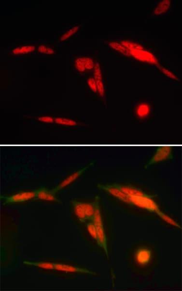 Immunocytochemistry/ Immunofluorescence - Anti-HuR / ELAVL1 antibody [19F12AE12] (ab170193)