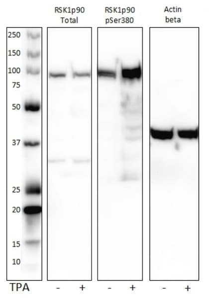 Western Blot Validation