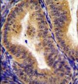 Immunohistochemistry (Formalin/PFA-fixed paraffin-embedded sections) - Anti-CD130 (gp130) antibody - C-terminal (ab170257)