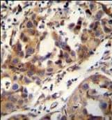 Immunohistochemistry (Formalin/PFA-fixed paraffin-embedded sections) - Anti-CCDC17 antibody - C-terminal (ab170265)