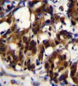Immunohistochemistry (Formalin/PFA-fixed paraffin-embedded sections) - Anti-TRADD antibody (ab170371)