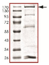 SDS-PAGE - Recombinant human Dnmt3a protein (ab170408)