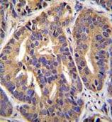 Immunohistochemistry (Formalin/PFA-fixed paraffin-embedded sections) - Anti-GTF2H2C antibody - C-terminal (ab170429)