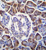 Immunohistochemistry (Formalin/PFA-fixed paraffin-embedded sections) - Anti-GDPD1 antibody - N-terminal (ab170431)