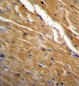 Immunohistochemistry (Formalin/PFA-fixed paraffin-embedded sections) - Anti-TBC1D13 antibody (ab170529)