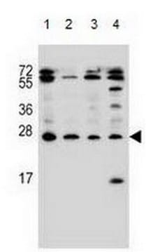 Western blot - Anti-Endothelin 1 antibody - C-terminal (ab170544)