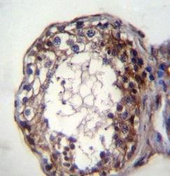 Immunohistochemistry (Formalin/PFA-fixed paraffin-embedded sections) - Anti-Acid sphingomyelinase antibody - C-terminal (ab170579)