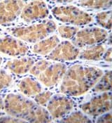 Immunohistochemistry (Formalin/PFA-fixed paraffin-embedded sections) - Anti-Salusin alpha antibody (ab170596)