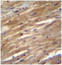 Immunohistochemistry (Formalin/PFA-fixed paraffin-embedded sections) - Anti-FSD2 antibody - N-terminal (ab170616)