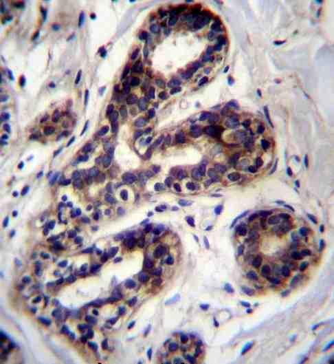 Immunohistochemistry (Formalin/PFA-fixed paraffin-embedded sections) - Anti-PCCA antibody (ab170685)