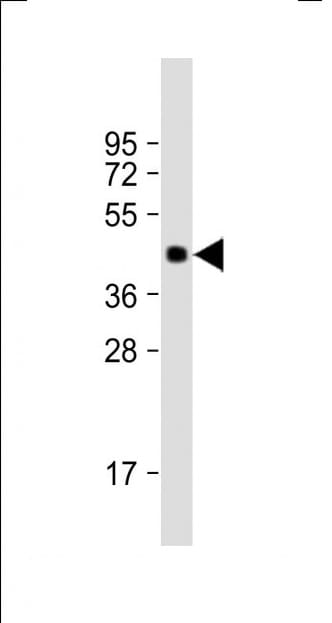 Western blot - Anti-MBOAT4 antibody (ab170690)