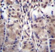 Immunohistochemistry (Formalin/PFA-fixed paraffin-embedded sections) - Anti-MDM1 antibody - C-terminal (ab170704)