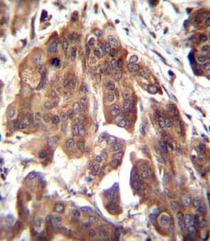 Immunohistochemistry (Formalin/PFA-fixed paraffin-embedded sections) - Anti-GLMN antibody - C-terminal (ab170776)