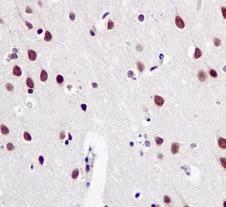 Immunohistochemistry (Formalin/PFA-fixed paraffin-embedded sections) - Anti-SF3B1 antibody [EPR11987(B)] (ab170854)