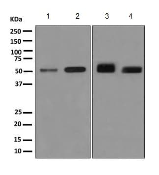 Western blot - Anti-KIR2DS2 antibody [EPR8925(2)] (ab170857)
