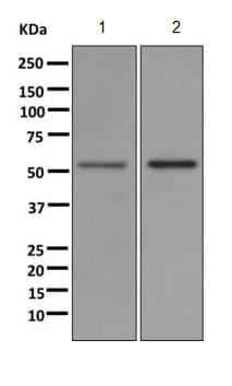 Western blot - Anti-UGT1A1 antibody [EPR9592] (ab170858)