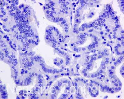 Immunohistochemistry (Formalin/PFA-fixed paraffin-embedded sections) - Anti-APOBEC2 antibody [EPR11286(B)] (ab170859)