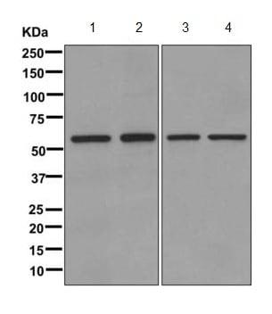 Western blot - Anti-TCP1 eta antibody [EPR10945(B)] (ab170861)