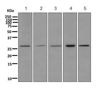 Western blot - Anti-TPK1 antibody [EPR10918] (ab170863)