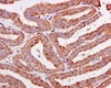 Immunohistochemistry (Formalin/PFA-fixed paraffin-embedded sections) - Anti-ERAB antibody [EPR11838(B)] (ab170864)