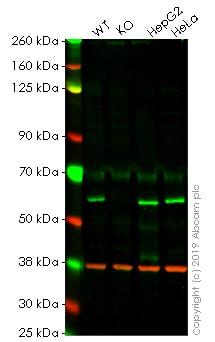 Western blot - Anti-TOM1 antibody [EPR11988(B)] (ab170866)