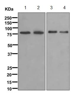 Western blot - Anti-Fructose 6 Phosphate Kinase antibody [EPR10735] (ab170868)