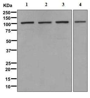 Western blot - Anti-VPS11 antibody [EPR10345] (ab170869)