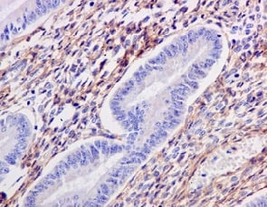 Immunohistochemistry (Formalin/PFA-fixed paraffin-embedded sections) - Anti-TGFBI antibody [EPR12078(B)] (ab170874)