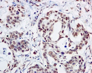 Immunohistochemistry (Formalin/PFA-fixed paraffin-embedded sections) - Anti-MDM2 (phospho S166) antibody [EPR1450(2)] (ab170880)