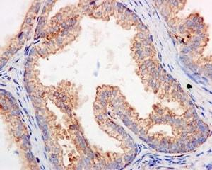 Immunohistochemistry (Formalin/PFA-fixed paraffin-embedded sections) - Anti-SH2D5 antibody [EPR11181] (ab170881)