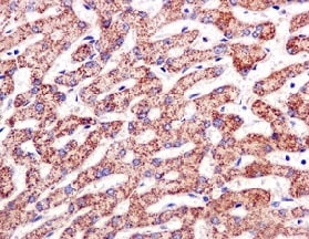 Immunohistochemistry (Formalin/PFA-fixed paraffin-embedded sections) - Anti-PPOX antibody [EPR10401] (ab170884)