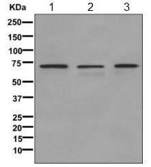 Western blot - Anti-ZNF92 antibody [EPR11514] (ab170885)
