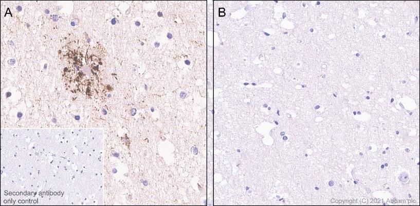 Immunohistochemistry (Formalin/PFA-fixed paraffin-embedded sections) - Anti-Tau (phospho S214) antibody [EPR1884(2)] (ab170892)