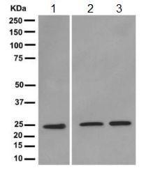 Western blot - Anti-Triosephosphate isomerase antibody [EPR12149(B)] (ab170894)