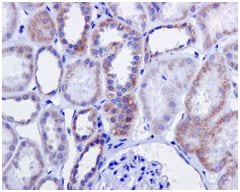 Immunohistochemistry (Formalin/PFA-fixed paraffin-embedded sections) - Anti-H6PD/GDH antibody [EPR12338(B)] (ab170895)