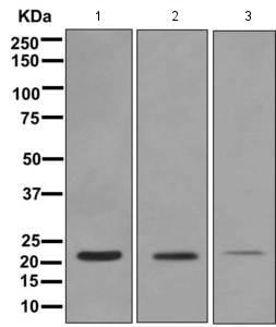 Western blot - Anti-TAGLN/Transgelin antibody [EPR11995(B)] (ab170902)