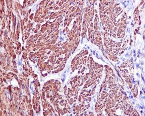 Immunohistochemistry (Formalin/PFA-fixed paraffin-embedded sections) - Anti-TAGLN/Transgelin antibody [EPR11995(B)] (ab170902)