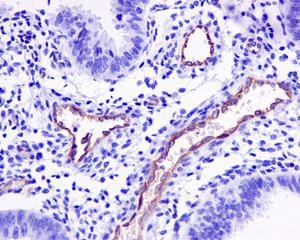 Immunohistochemistry (Formalin/PFA-fixed paraffin-embedded sections) - Anti-P Glycoprotein antibody [EPR10363] (ab170903)