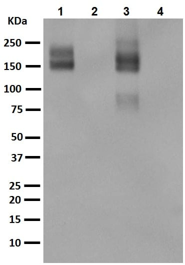 Western blot - Anti-P Glycoprotein antibody [EPR10364-57] (ab170904)