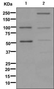 Western blot - Anti-C4a antibody [EPR11241] (ab170917)
