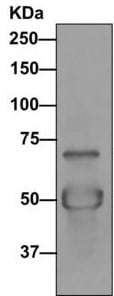 Immunoprecipitation - Anti-DNAI2 antibody [EPR11224] (ab170920)