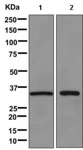 Western blot - Anti-FGL1 antibody [EPR9937] (ab170922)