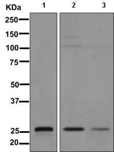 Western blot - Anti-15-PGDH antibody [EPR12349(B)] (ab170924)