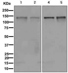 Western blot - Anti-Calpain 15/SOLH antibody [EPR11078] (ab170926)