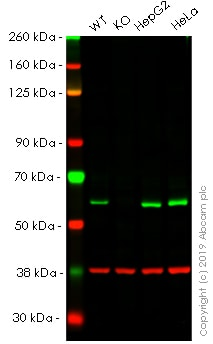 Western blot - Anti-TOM1 antibody [EPR11989(B)] (ab170928)